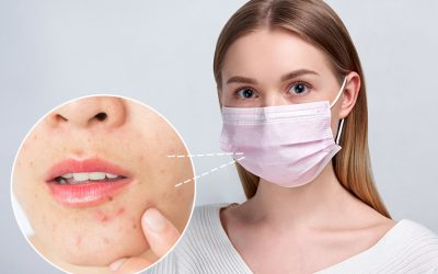 ¿Qué rutina facial necesitas debido al uso de la mascarilla?